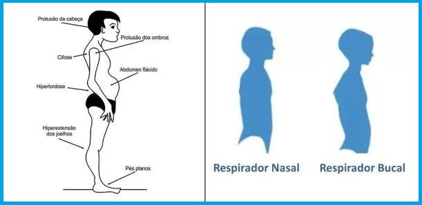 Respirador Oral x Respirador Nasal